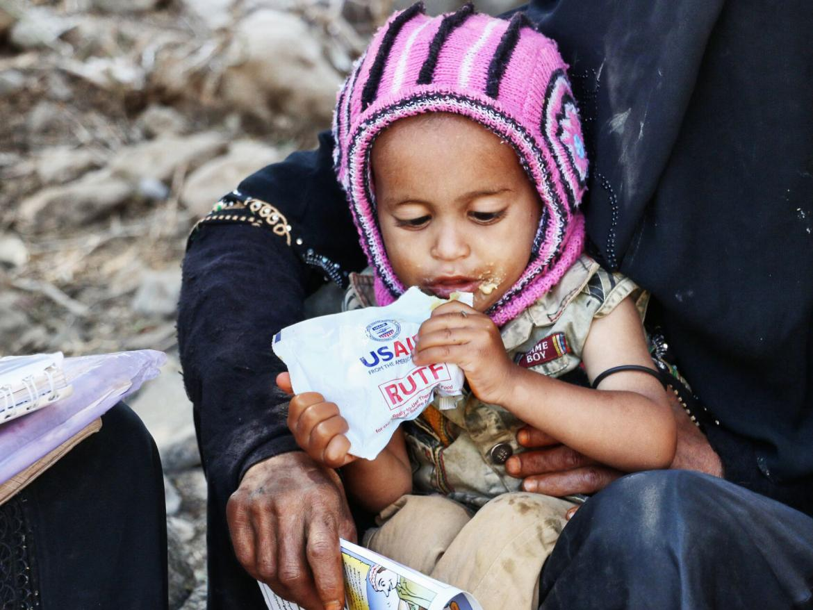A child in Yemen eats a ready-to-use therapeutic food bag